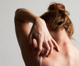 Dermatitis atópica y CBD